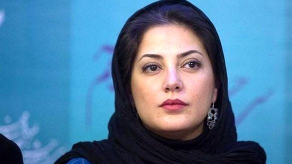 چهره خانم بازیگر مشهور ایرانی قبل و بعد از جراحی زیبایی + عکس